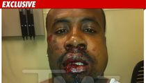 Cedric Benson's Alleged Beating Victim -- BLOODY Photo