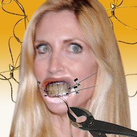 Enchanting Jaw Wired Shut Diet Photos - Diagram symbol - pasutri.us
