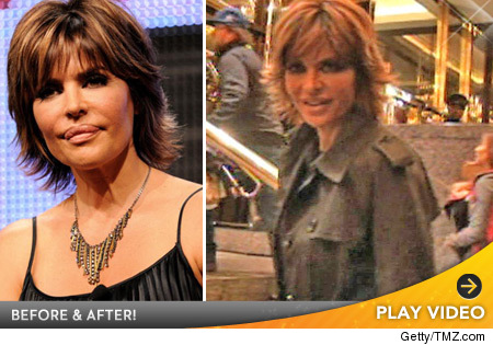 Lisa Rinna lip reduction photos.
