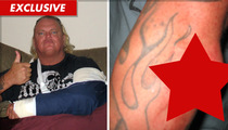 Former WWE Star -- Gnarly Elbow Injury in Motorcycle Crash