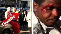 'Pawn Stars' Chumlee -- BLOODY FIGHT on Hollywood Blvd.