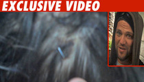 Bam Margera -- Check Out My Bloody, Stapled Head