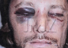 Gabriel Aubry -- My Bloody, Battered Face -- Olivier Threatened to KILL ME