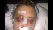 Jason London -- Wanna See My BUSTED Face After Surgery? [Photo]