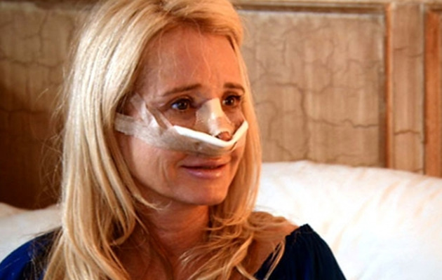 Kim Richards' Rhinoplasty: Can You ID The Real Housewives' Nose Jobs?