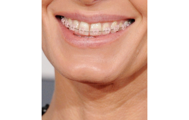 Who Was Wearing Braces on the Grammy Red Carpet?