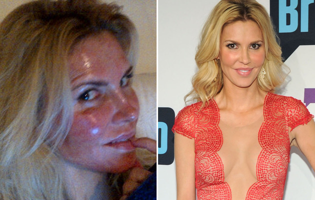 Brandi Glanville Reveals Badly Burned Face After Laser Treatment