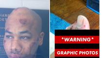 Rapper R. Prophet -- Graphic Post-Taser Photos