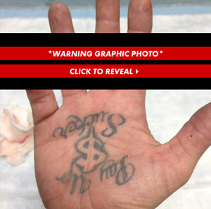 Jesse James' Gruesome Finger Photos