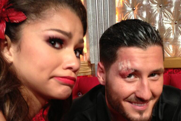 Zendaya Injures Val Chmerkovskiy -- See His Gross Eye Injury!