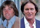 Bruce Jenner: Good Genes or ... Docs?