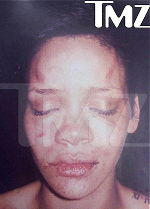 Brutal images of Rihanna surface from the beating she received from Chris Brown.