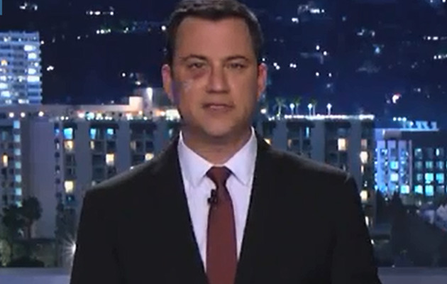 Funny Video: Jimmy Kimmel Shares Hilarious Black Eye Reenactment!