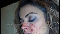 GG from 'Shahs of Sunset' -- BF BASHED ME FIRST ... I've Got Bloody Evidence