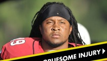 Arizona Cardinals' Rashad Johnson -- The Most Gruesome NFL Injury You've Ever Seen