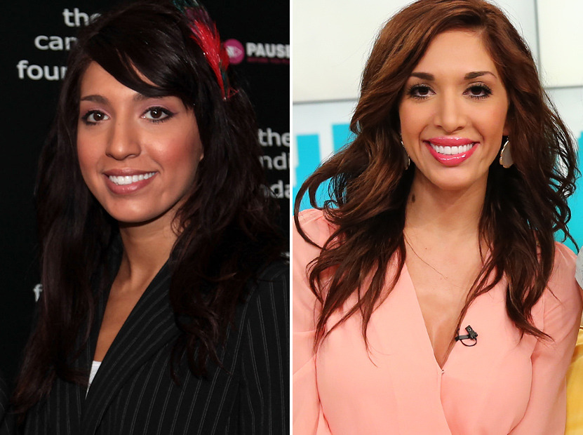 Farrah Abraham Before and After Plastic Surgery Including