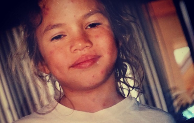 Flashback Friday: Chrissy Teigen Posts Hilarious Throwback Picture