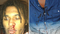 Chris Brown -- BLOODY PHOTOS From Alleged D.C. Beatdown