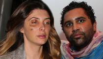 Brittny Gastineau and Retna -- No Hard Feelings Over Brutal Fight