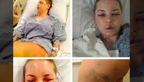 Christy Mack -- War Machine Almost Killed Me ... 18 Broken Bones, Ruptured Liver