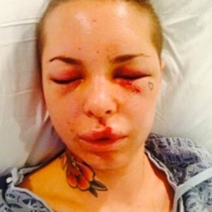 Christy Mack -- Injury Photos