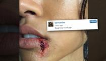 Karrueche Tran -- Oh, That Bloody Lip? It's Just ... (PHOTO)