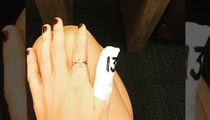 Taylor Swift Slices Thumb in Cooking Accident ... Bad Kitchen Blood