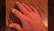 Jimmy Fallon -- My Jager-Bombed Hand Is All Good (PHOTO)