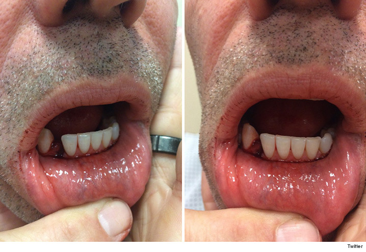 Kurt Warner: I Cracked My Jaw ... Took Elbow To The Face | TMZ.com