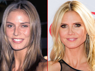 Heidi Klum -- Good Genes or Good Docs?