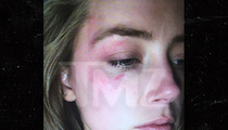 Amber Heard -- Witnesses Say No Facial Bruising Days After Alleged Attack