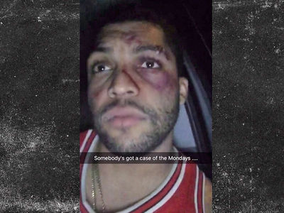 O'Shea Jackson Jr. -- My Face Looks Busted Up ... But I'm Just Fine (VIDEO)