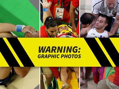 Rio 2016 -- French Gymnast Suffers Brutal Leg Break (PHOTOS)
