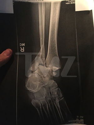Steve-O's Foot Injury Photos