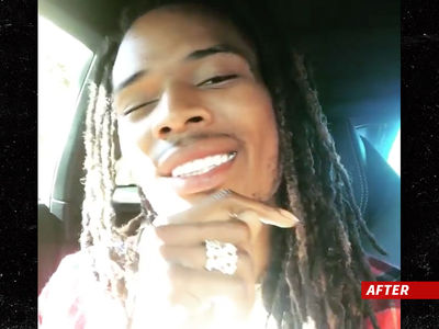 Fetty Wap -- Dropping $80k On New Chompers ... Makes Me Smile! (PHOTO)