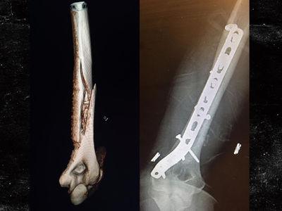 Lindsey Vonn -- Crashes Hard in Ski Practice ... Cracks Arm Bone (PHOTO)