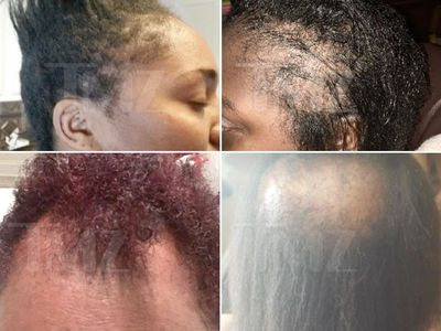 L'Oreal SoftSheen Hair Relaxers Should Be Recalled, Lawyers Demand (PHOTO GALLERY)