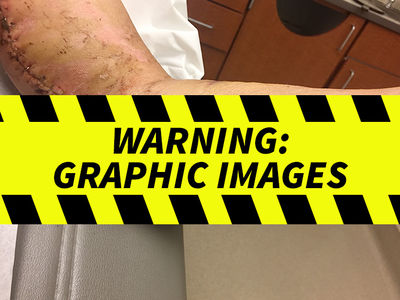 Carnival Cruise Passenger Sues After Getting Impaled by Mini-Golf Club (PHOTO GALLERY)