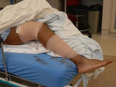 Aqib Talib Gunshot Photos Released ... After NFL Player Shot Himself (PHOTOS + VIDEO)