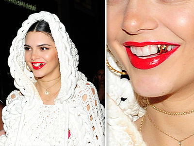 Kendall Jenner Rocks Gold Grill for London Fashion Week (PHOTO)