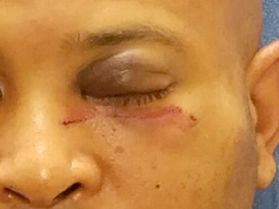 Mike Epps' Alleged Battery Victim Has Gnarly Black Eye (PHOTO GALLERY + VIDEO)