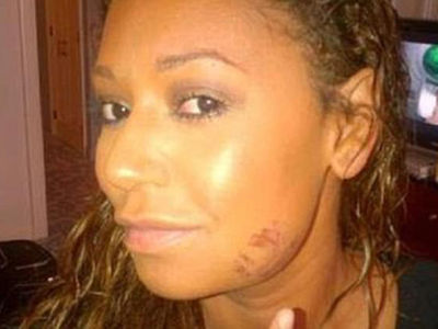 Mel B Claims Husband Stephen Belafonte Beat, Sexually Exploited Her (PHOTO GALLERY + VIDEO)