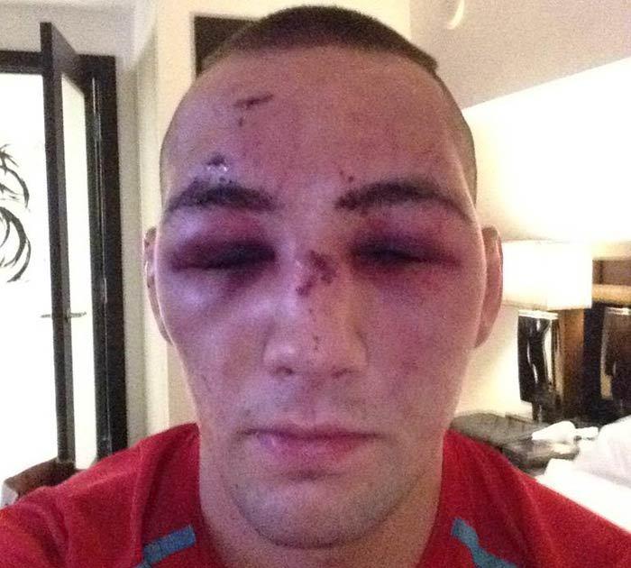 ufc broken face - photo #28