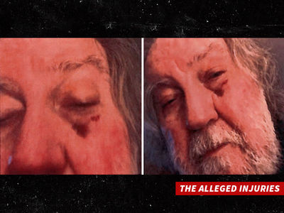 'Texas Chain Saw Massacre' Director Allegedly Attacked by Ex, Shows Face Bruises (PHOTOS)