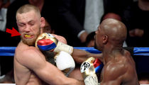 Conor McGregor Had Giant Penis Emergency Before Mayweather Fight