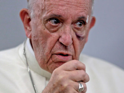 Pope Francis' Black Eye After Banging into Popemobile