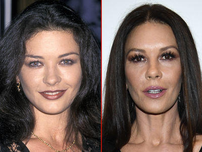 Catherine Zeta-Jones -- Good Genes or Good Docs?