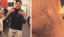 J.J. Watt Shows Off Gnarly Leg Surgery Scar