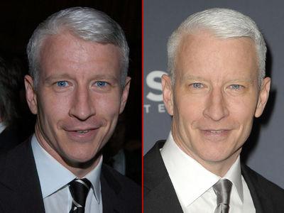 Anderson Cooper -- Good Genes or Good Docs?