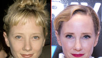 Anne Heche -- Good Genes or Good Docs?